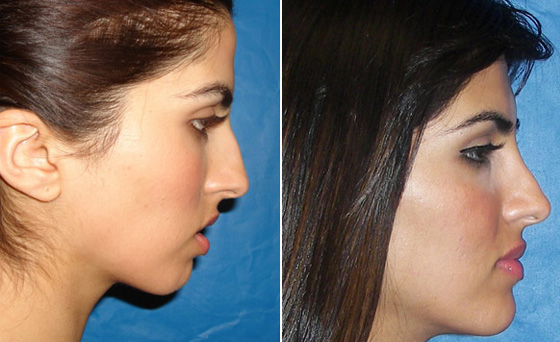 Orthognathic Surgery East London South Africa | Jaw Surgery | Dr Herman  Kruger